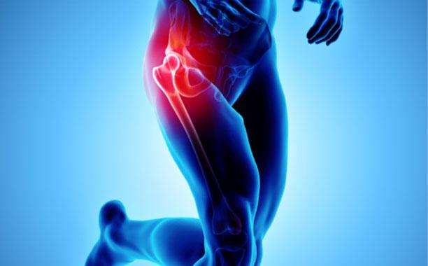 protesi-anca-studio-medico-chirurgo-ortopedico-a-roma-provincia-velletri