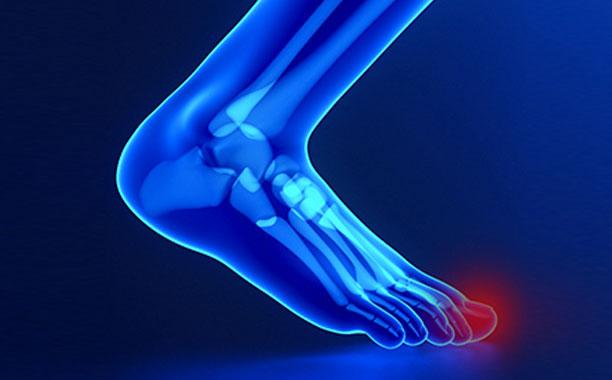 protesi-chirurgia-piedi-studio-medico-chirurgo-ortopedico-a-roma-provincia-velletri