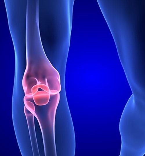 protesi-ginocchio-revisionato