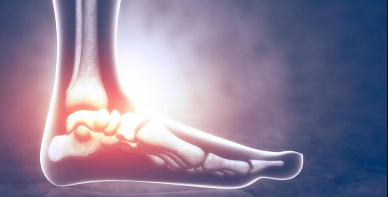 protesi-piede-operazione-chirurgica