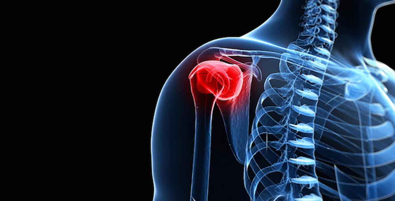 revisione-chirurgia-protesi-spalla-ortopedico-marcucci-roma-provincia-velletri-latina