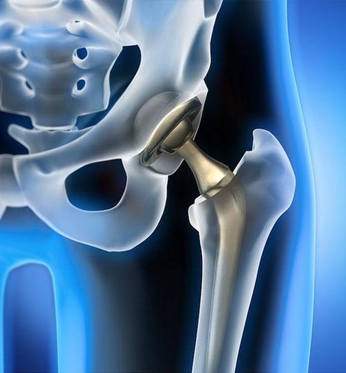 revisione-protesi-anca-ginocchio-spalla-piede-ortopedico-marcucci-professore-a-roma-provincia-castelli-romani-lazio-velletri